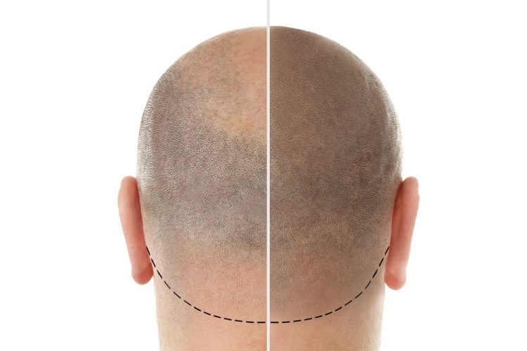 Stosowanie i skład. Co to jest Hairstim?