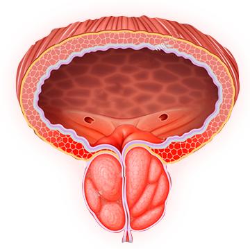 Efekty użytkowania Prostaline